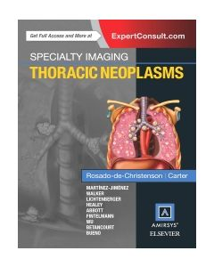 Specialty Imaging: Thoracic Neoplasms