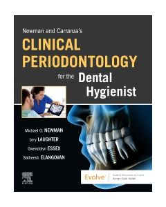 Newman and Carranza's Clinical Periodontology for the Dental Hygienist - E-Book