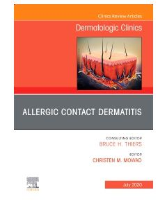 Allergic Contact Dermatitis An Issue of Dermatologic Clinics
